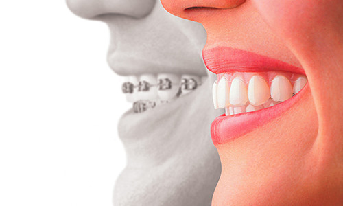 Invisalign for Teens in Staten Island